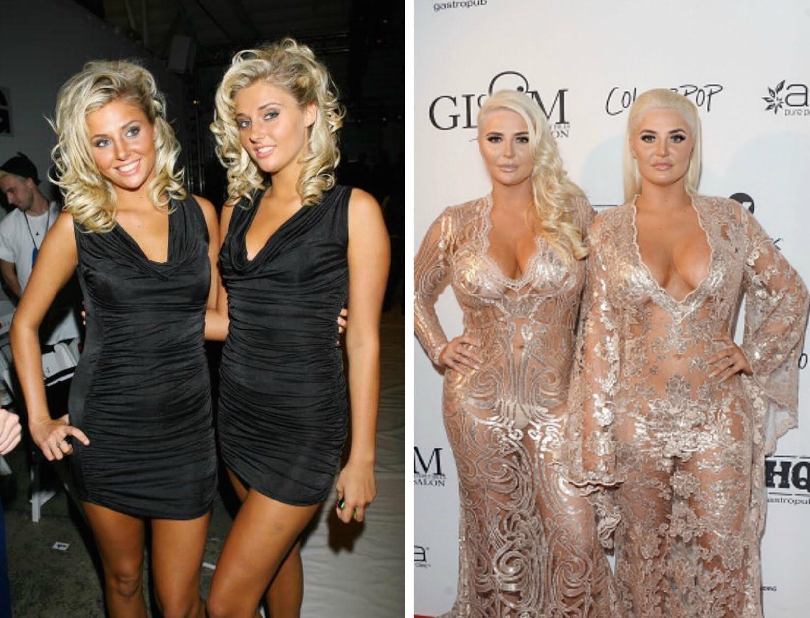 Nude shannon twins after implants
